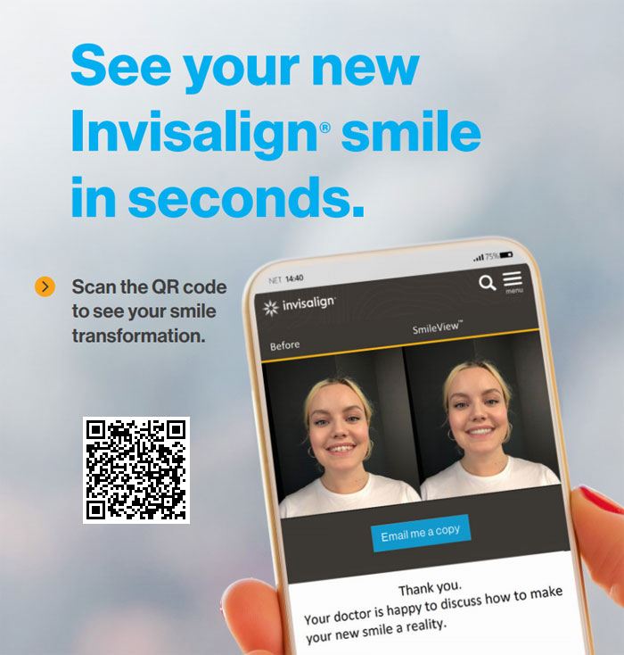 Invisalign Smile View Pop-up